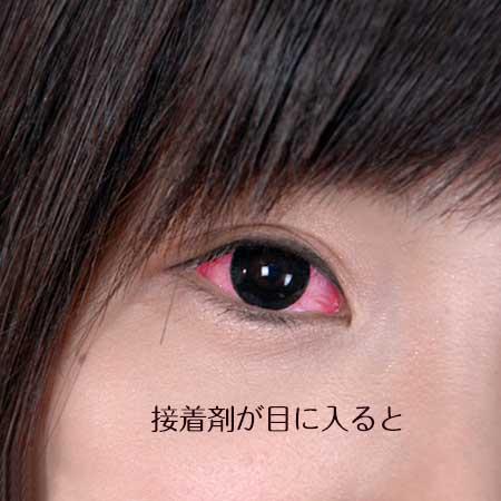 目が充血した女性