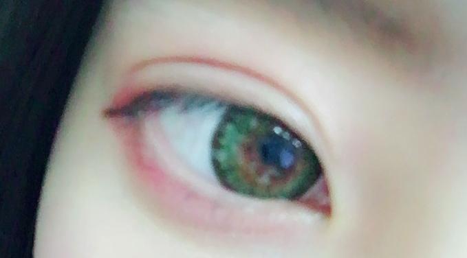 目がぱっちりカワイクなりました