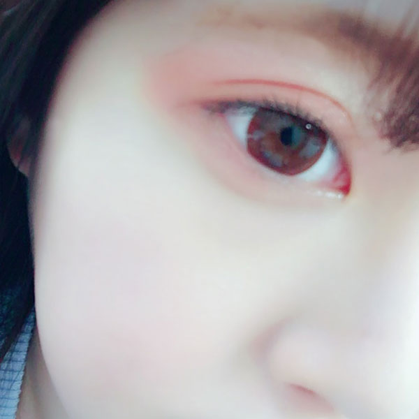 目と頬のアップ
